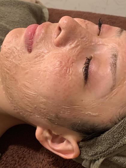 【1ヶ月以内再来】60分小顔コルギ+美肌パック(スキンブレスマスク)