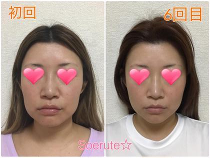 全身矯正&小顔矯正のセットを6回通った結果になります♪ お顔の歪みが取れました☆