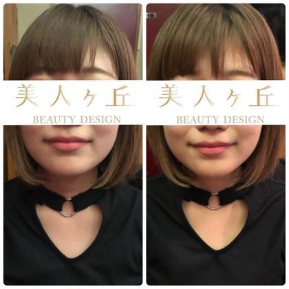 小顔矯正体験✨痛みなく骨を動かす施術💀メイクしたままOK注意事項をお読みください