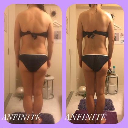 3ヶ月でマイナス7kg! 痩身目的でお通いのお客様  姿勢も少しずつ改善中。 ANFINITÉ所属・ANFINITÉアンフィニテのフォト