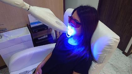 歯のホワイトニング✨