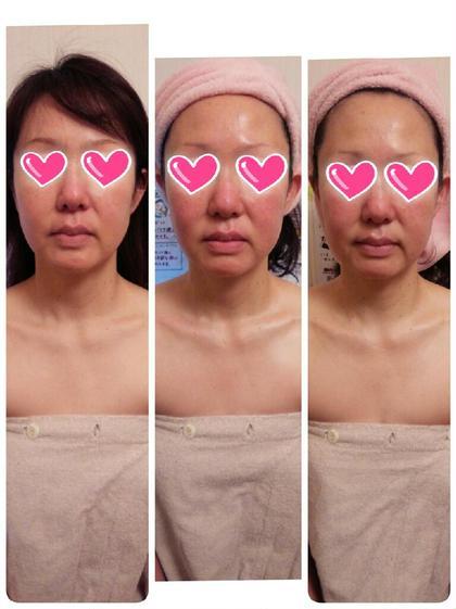 【カウンセリング重視】肌質改善!フェイシャル 毛穴掃除 パック付き