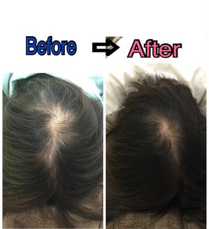 【育毛コース】  左がBefore➡︎右が施術から約2カ月後のお写真です❗️ 髪にはハリコシが出てきて 髪の密度が全然違うのが分かります✨