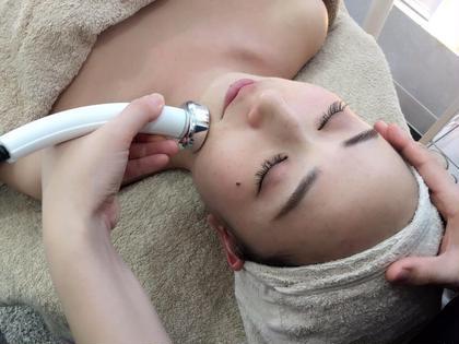 最新技法である幹細胞導入や、毛穴吸引、イオン導入、オゾン高周波など最先端のマシンで肌トラブル全般の改善をしていくことができます。 private beauty salon &所属・六本木andのフォト