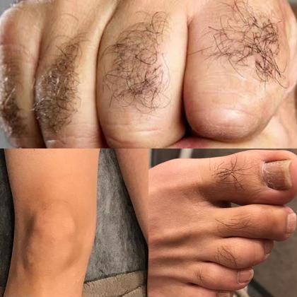 MENS★美肌脱毛★Sパーツ全部【手の指・甲/足の指・甲/両膝】