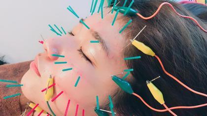【クリスマスクーポン】美容鍼+小顔コース 12月20日~30日限定