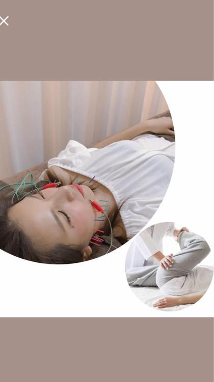 ⚡️電気を流す美容鍼⚡️➕骨盤矯正orヘッドマッサージ