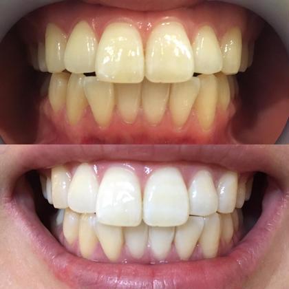 【タイムセール‼️先着5名様❄️】7×3回分 最新ホワイトニングを体験できてより早く理想の歯の白さへ😆‼️(1日完結)