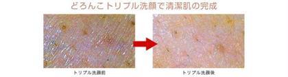 ✨妊婦に人気✨細やかなサイズの泥で毛穴保湿フェイシャル45分