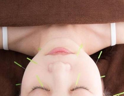 美鍼灸サロンHarie (ハリエ)所属・美容鍼灸師オダのスタイル