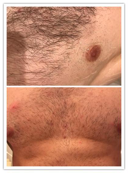 その他 メンズ脱毛 2回目 毛周期関係なく打てるので、3週間で2回目!