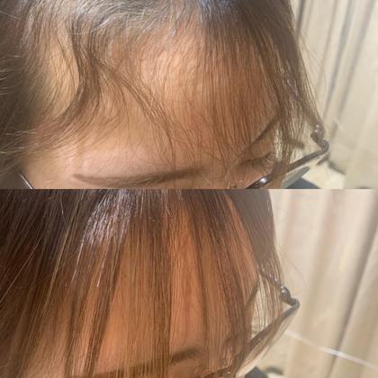 ❤️部分的なくせ毛も理想の仕上がりに❤️顔周り縮毛矯正&カット