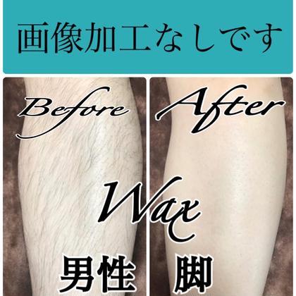 《男性WAX》ひざ下 or ひざ上 ワックス脱毛+保湿