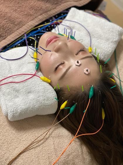 NO.1人気🌿電気を流す美容鍼