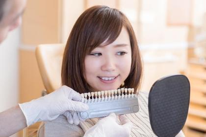 歯のセルフホワイトニング お試し体験!