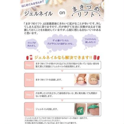 巻き爪矯正(1本)+👣フットジェル🌈¥8500✨2本は+¥5000になりますのでご予約の際メッセージお願い致します