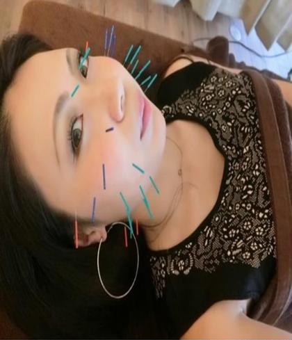美容鍼+ヘッドマッサージ+高濃度炭酸ミスト 初回体験