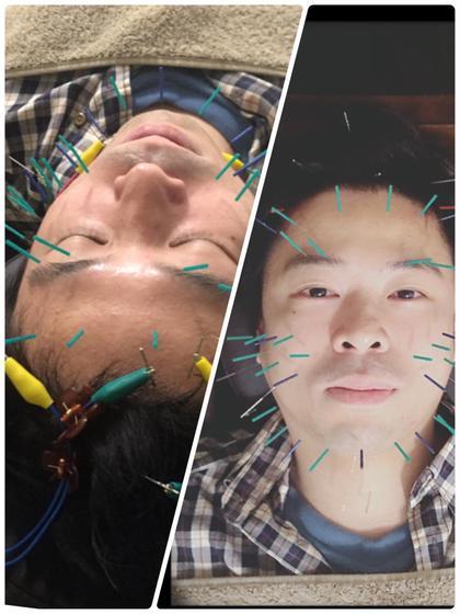 【美顔鍼🦔60本以上】お顔と頭部への美顔鍼+微弱電流+首肩もみほぐし+カッサ+ローラー鍼+小顔矯正