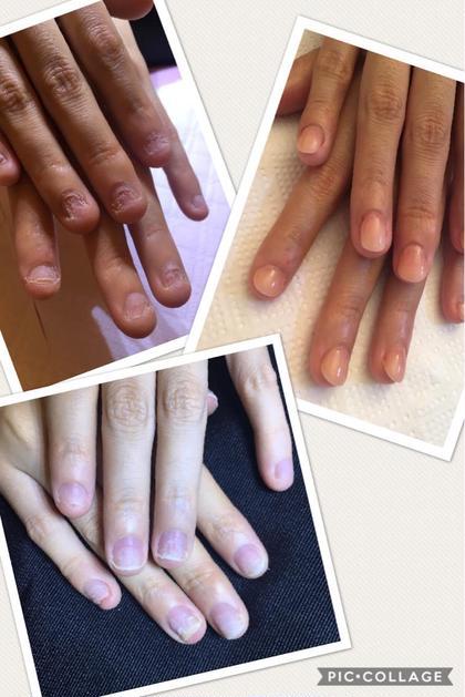 美爪へ変身❗️深爪矯正ネイル