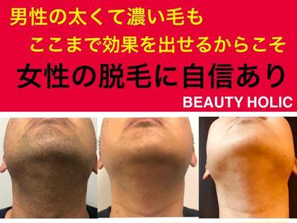 1日1名限定⚡️痛くない⚡️3周年感謝企画🎊全身脱毛(顔、VIOサービス)体験💐🉐4/30まで🉐