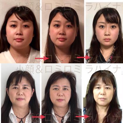 顔痩せ効果あり! 4キロ痩せて見えます。 むくみ、二重顎にお悩みの方に 小顔矯正&ロミロミラハイナ所属・大吉ゆき子のフォト