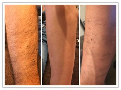 その他 メンズ脱毛 左: 施術前 真ん中: 施術後 右: 1ヶ月後  お客様のお肌の状態や毛の濃さなどにより、 光の波動や強さを変えてオーダーメイドで当サロンでは施術していきます。 短期終了のメニューもご用意しております。