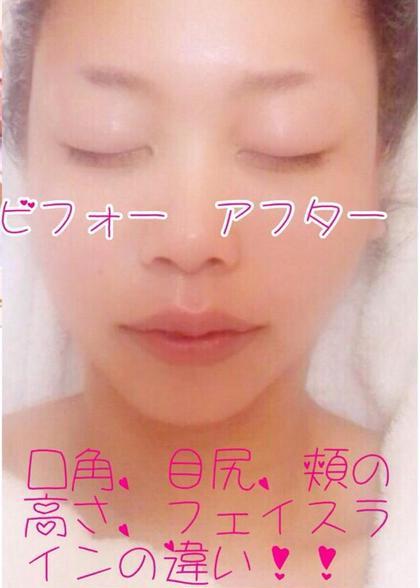小顔リフトアップコース  写真 左 施術前 右 施術後 ビューティーサロン  リリエット所属・柴田梨恵子のフォト