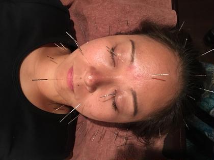 初回限定  美容鍼(顔+首+頭)と肩首と小顔矯正のセットメニュー