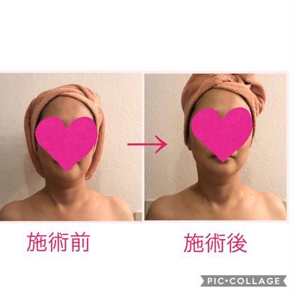 PrivatesalonArooge所属の伊藤順子のエステ・リラクカタログ