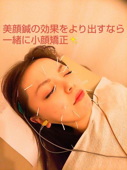 フェイスライン引き締めお顔のむくみ改善!顔集中美容コース(美容鍼+小顔矯正)