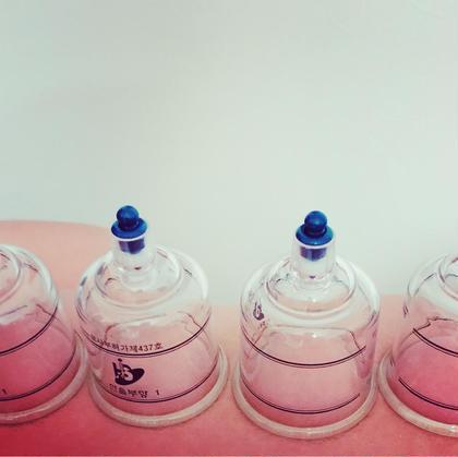 カッピング☆吸い玉療法 美容美肌(*≧∀≦*) 施術後2.3日長くて1週間の跡が残ります(*^▽^*)
