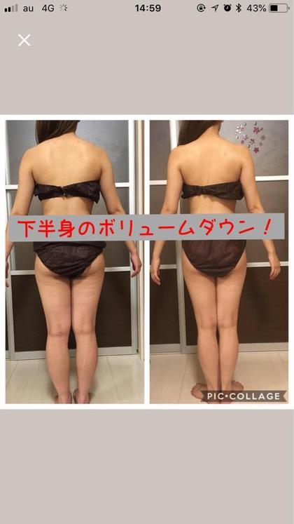 🌼初回口コミ限定🌼脂肪撃退ジェル&ヒートマットオールハンド痩身マッサージ80分