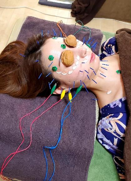 【電気を流す女優针&くるみ灸】100minしっかり美容鍼灸🌙お化粧したまま即小顔🌙無料→美容灸🌃