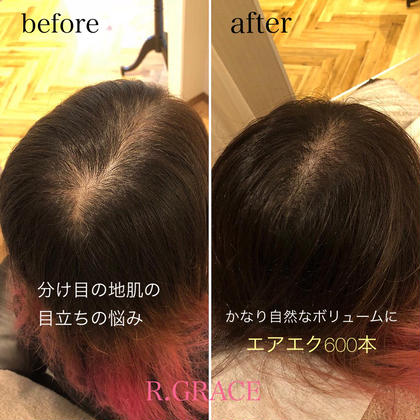 髪が細かったり、分け目が目立つなど悩む女性にオススメです!エアエクは、髪の毛の毛周期で抜けるまで付いているため、簡単に少なくなることはありません! リペアも、2〜3ヶ月に1度など、気になった時、伸びてきた結び目を根元に戻しながら、増やしたければ増やす、というぐらいにご希望で可能です^ ^