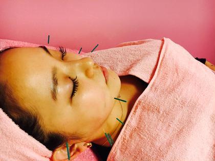 《美容鍼》化粧品やエステのように、肌の表面からアプローチするのではなく、組織や細胞、筋肉等を刺激して体の内側に働きかける美容法です。 肌だけでなく、胃や腸の改善、肩コリ、足のむくみなど、体全体のバランスを調整しながら、肌本来が持つ回復機能を活性化させ、アンチエイジングへと導いていきます。お肌のターンオーバーも促進します。 Beauty salonBrilliant所属・辛島望のスタイル