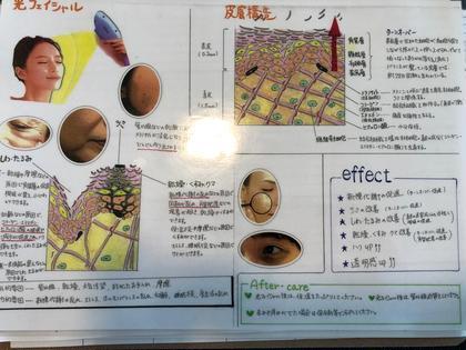 光フェイシャルモニター募集通常¥9000円が¥3000円にて可能です何度でも可能首もサービス込みパックつき