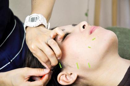 ✨ミニモ限定✨ご新規様のみ【美容鍼灸30分】+【カッピング15分】✨両方試したい方はこちら。