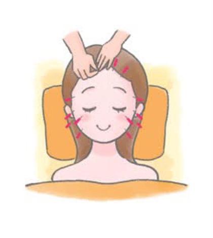 美容鍼【30分】【単品】