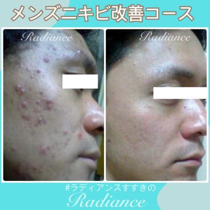 【メンズ限定メニュー】男のニキビ肌・乾燥肌・過剰皮脂肌など。お悩み解決フェイシャル60分 #メンズ札幌フェイシャル