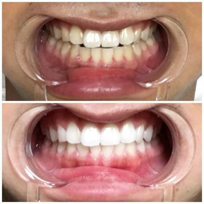 歯のホワイトニング✨スーパーホワイト