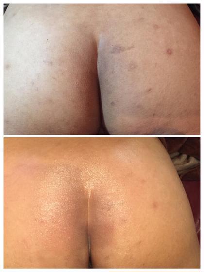 お尻ニギビも綺麗に! 皮膚再生療法 施術2回 エステティックサロン LuNa所属・LuNarumiのフォト