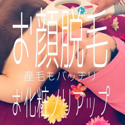 【8月限定】お顔脱毛 980円🌸