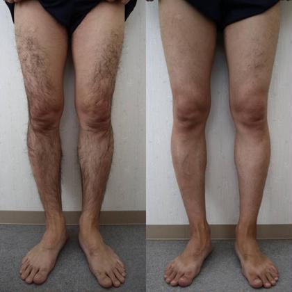 メンズ足全部脱毛 3回の施術でこんなに印象が変わります!!