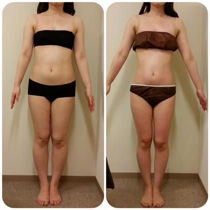 くびれが出来ると全体のラインは変わります。 痩身&セルライト専門サロン BodyWorksNavi所属・リーダーセラピストAYUのフォト