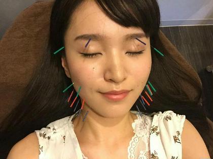 美顔鍼 モデル森山くるみさん 整体系女子の聖地『Qtaro鍼灸院』所属・iwakurayuのスタイル