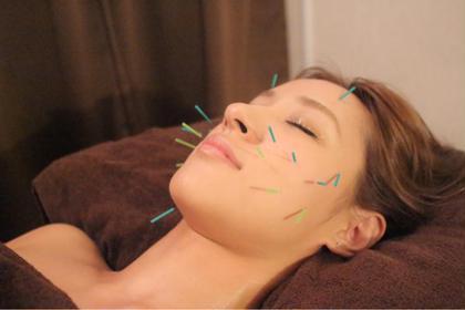 【初回】全身美容鍼❤️お顔とお体Wのお悩み改善コース!体の血流upで美容鍼効果を最大限に✨✨