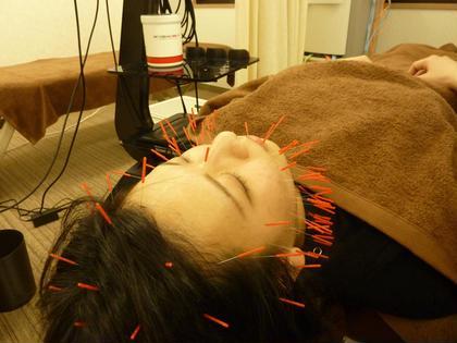 はりパック100+美肌促進セット✨ ・花粉症や片頭痛に伴う頭部の浮腫みと婦人科トラブルにも対応しながら行いました! 鍼灸整骨院いろは所属・O.Seiyaのフォト