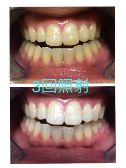10分3回照射🦷効果実績No.1👑歯科衛生士にお任せ♪セルフホワイトニング✨本数無制限