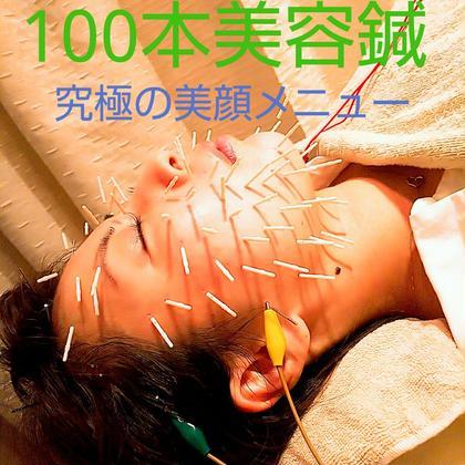 100本美容鍼 ~話題のゴージャスプランをご体感ください~
