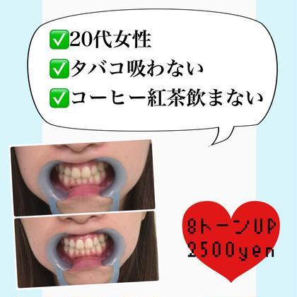 ⚠️歯の汚れはタバコやコーヒーだけじゃない⚠️